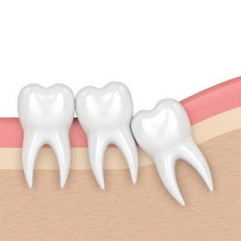 impacted-wisdom-tooth-oild79y7qmmhz76ymq042dax5zpvgyfoq40b6utqxs