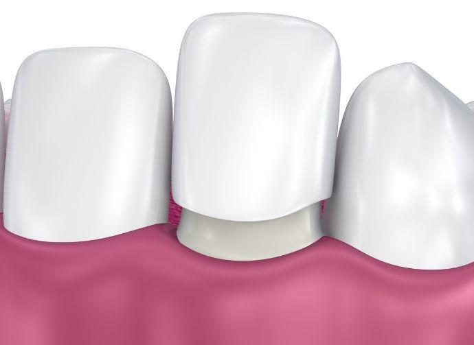 dental veneers fairfield