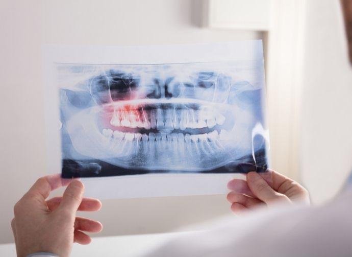 wisdom teeth fairfield